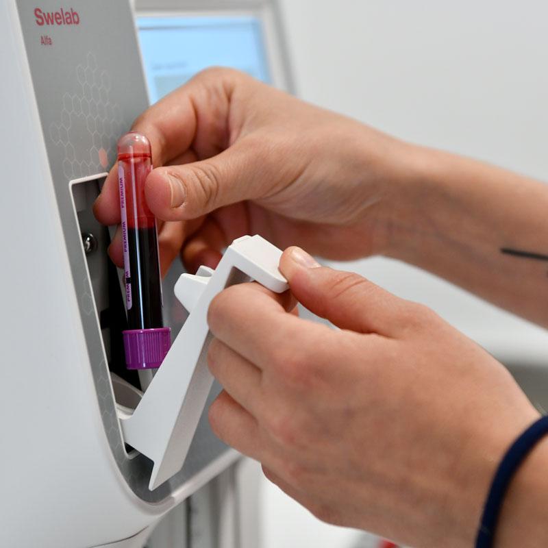 Bluttest, Harnprobe im Akutlabor 1060 Wien